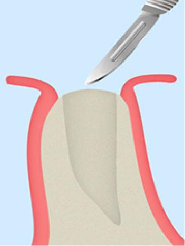 インプラント歯ぐき石灰