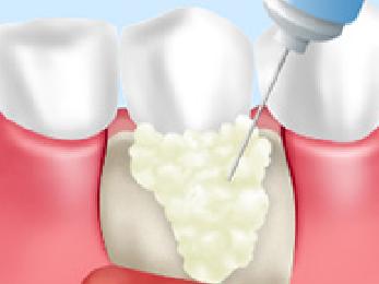 歯周病エム度ゲイン