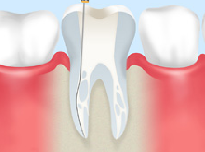 審美 歯の根虫歯