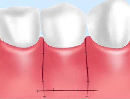 歯周病CTG