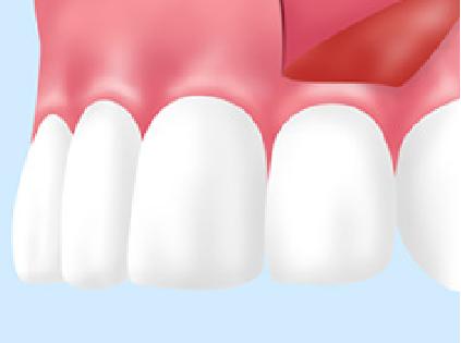 歯周病FGG