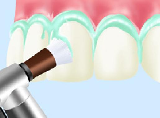 予防歯科PMTC
