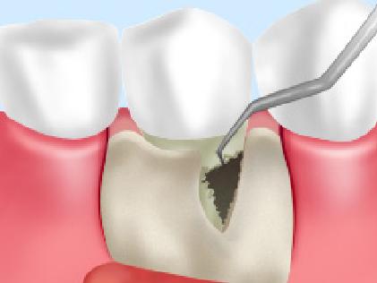 歯周病フラップ手術