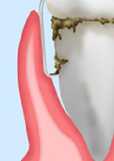 歯周病ルートプレーニング