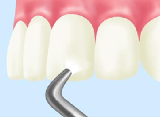 予防歯科エアフロー