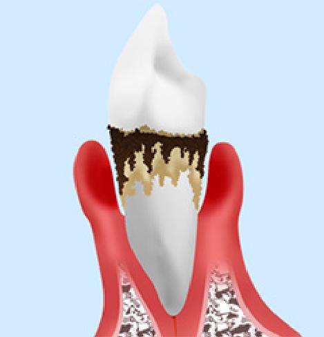 抜歯歯周病進行