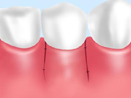 歯周病APF