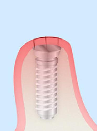 インプラント歯ぐき縫合