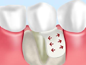 歯周病GTR