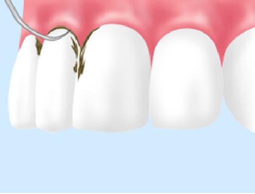 予防歯科スケーリング