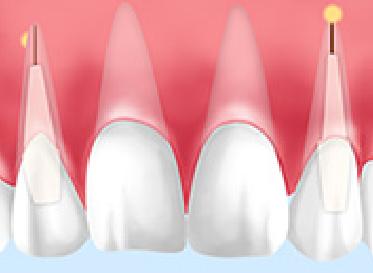 インプラント差し歯