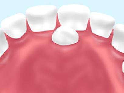 小児過剰歯左