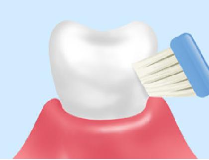 歯周病ブラッシング
