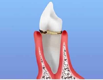 歯周病軽度