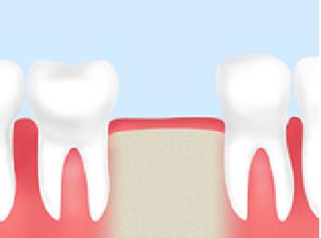 歯周病抜歯