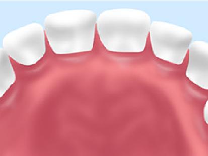 小児過剰歯右