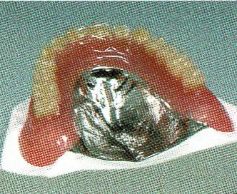 コバルトクロム